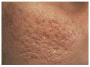 acne-scar-face