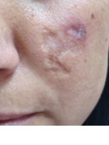 atrophic-scar-face