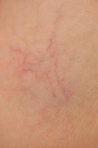 broken-capillaries