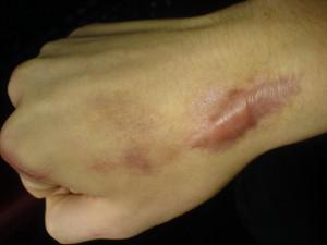 keloid-scar-hand