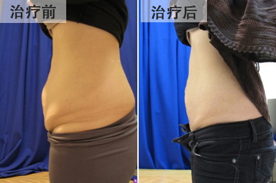 bna-body-recontouring-chinese