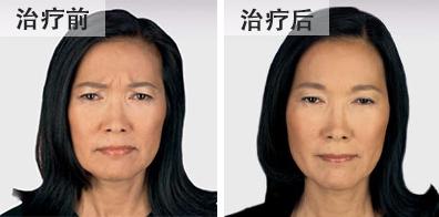 bna-botox-chinese