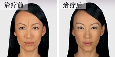bna-botox2-chinese