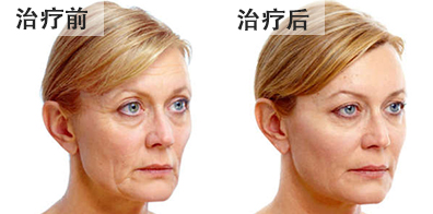 bna-fillers4-chinese