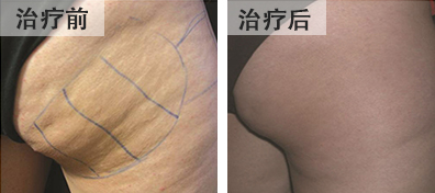 bna-rf-buttocks-cellulite-chinese