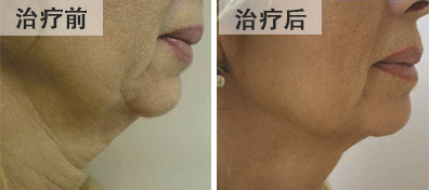 bna-rf-neck-tightening-chinese