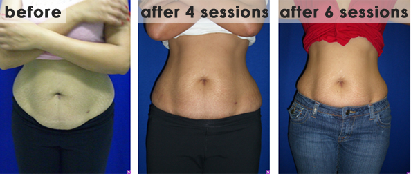 Accent-RF Unipolar: Abdomen Tightening. Before Picture: 10/30/2007, After Four Sessions: 11/27/2007, After Six Sessions: 12/14/2007. After 6 sessions, tighter abdominal skin with 11cm decrease in circumference.