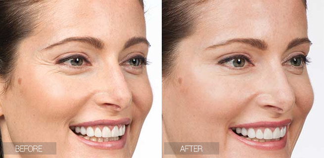 before-after-botox-crows-feet-woman