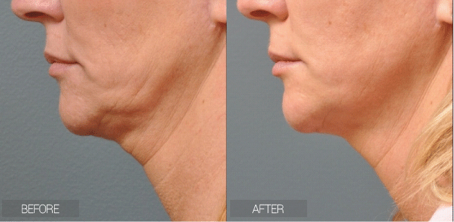 http://medicalspaclub.com/wp-content/uploads/before-after-ultherapy.jpg
