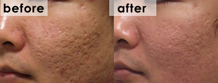 fractora-before-after-face-acne-scarring