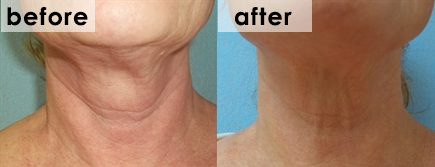 fractora-before-after-neck