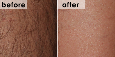 hair-removal-bbl-before-after
