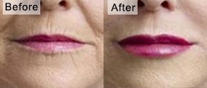 lips-filler-before-after
