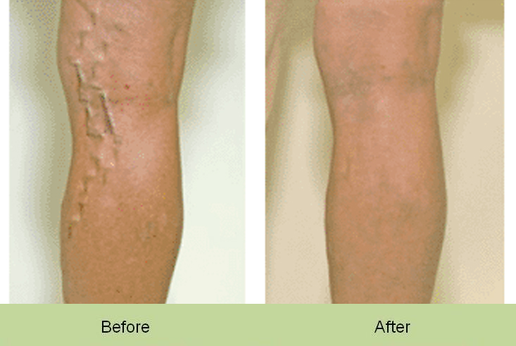 varicose-veins-legs-before-and-after
