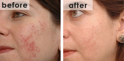 acne-beforenafter