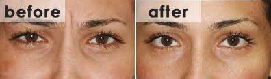 bna-botox-wrinkles