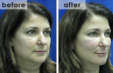 bna-face-slimming