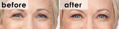 botox-crows-feet-before-and-after-angie