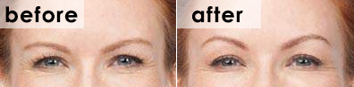 botox-crows-feet-before-and-after-challen