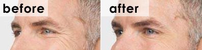 botox-crows-feet-before-and-after-michael