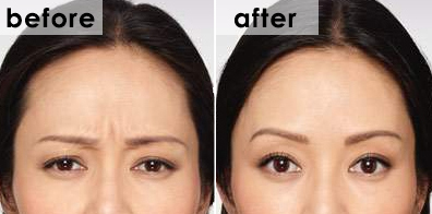 botox-frown-before-and-after-eiko