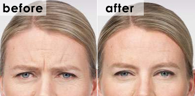 botox-frown-before-and-after-marianne