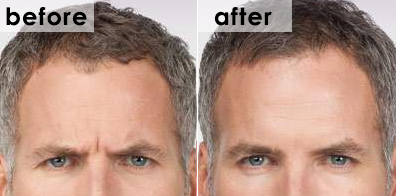 botox-frown-before-and-after-michael