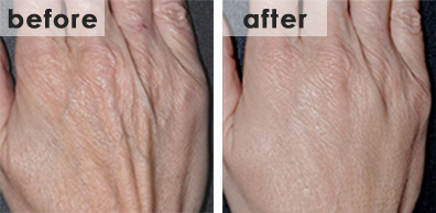 fillers-hand-rejuvenation-small
