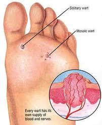 foot_wart