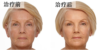 bna-fillers-chinese
