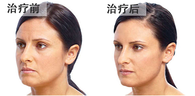 bna-fillers3-chinese