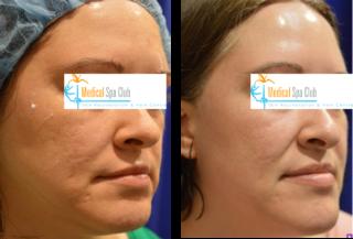 clear skin acne scars