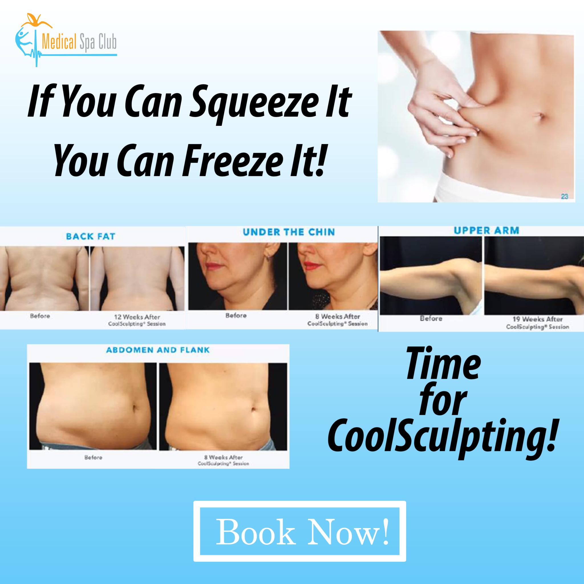 CoolSculpting Fat Loss