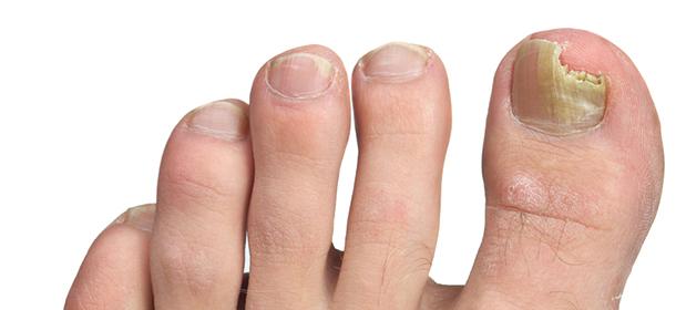 Fungal-nails-img