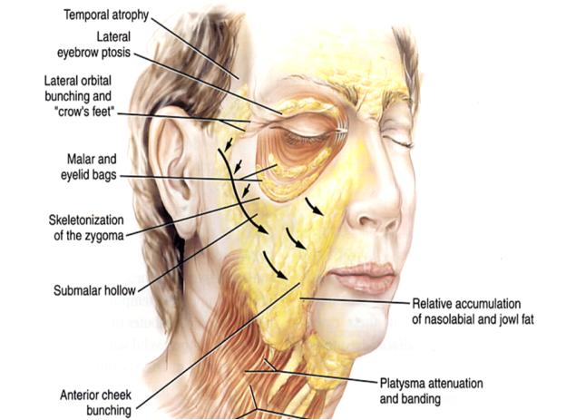 aging-face-sagging-skin