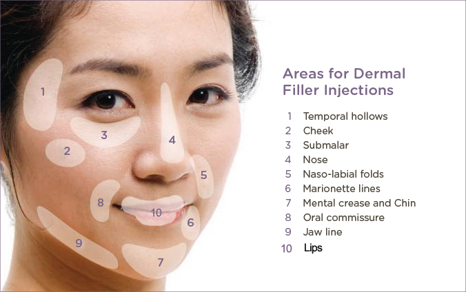 areas-dermal-fillers-face