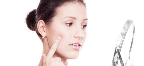 avoid-acne-summer
