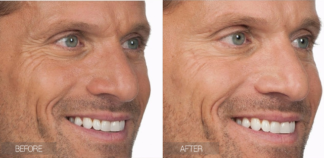 before-after-botox-crows-feet
