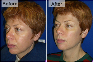 facelift-fillers-before-after