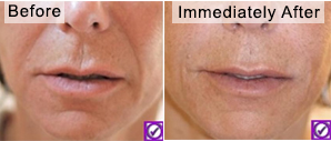 naso-labial-folds-fillers