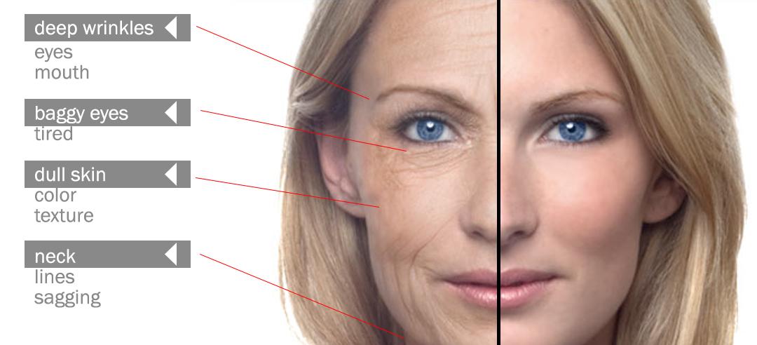 skin-concerns-50s