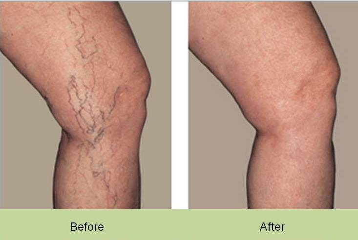 small-veins-legs-before-and-after