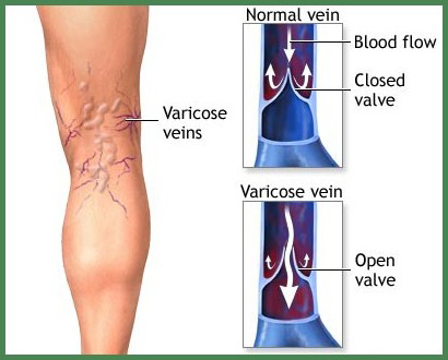 varicose-vein-diagram