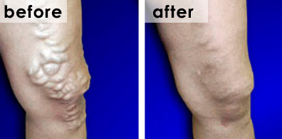 varicose-veins-ultrasound-foam-sclerotherapy-before-after